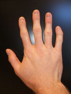 Photograph of right hand showing clinodactyly