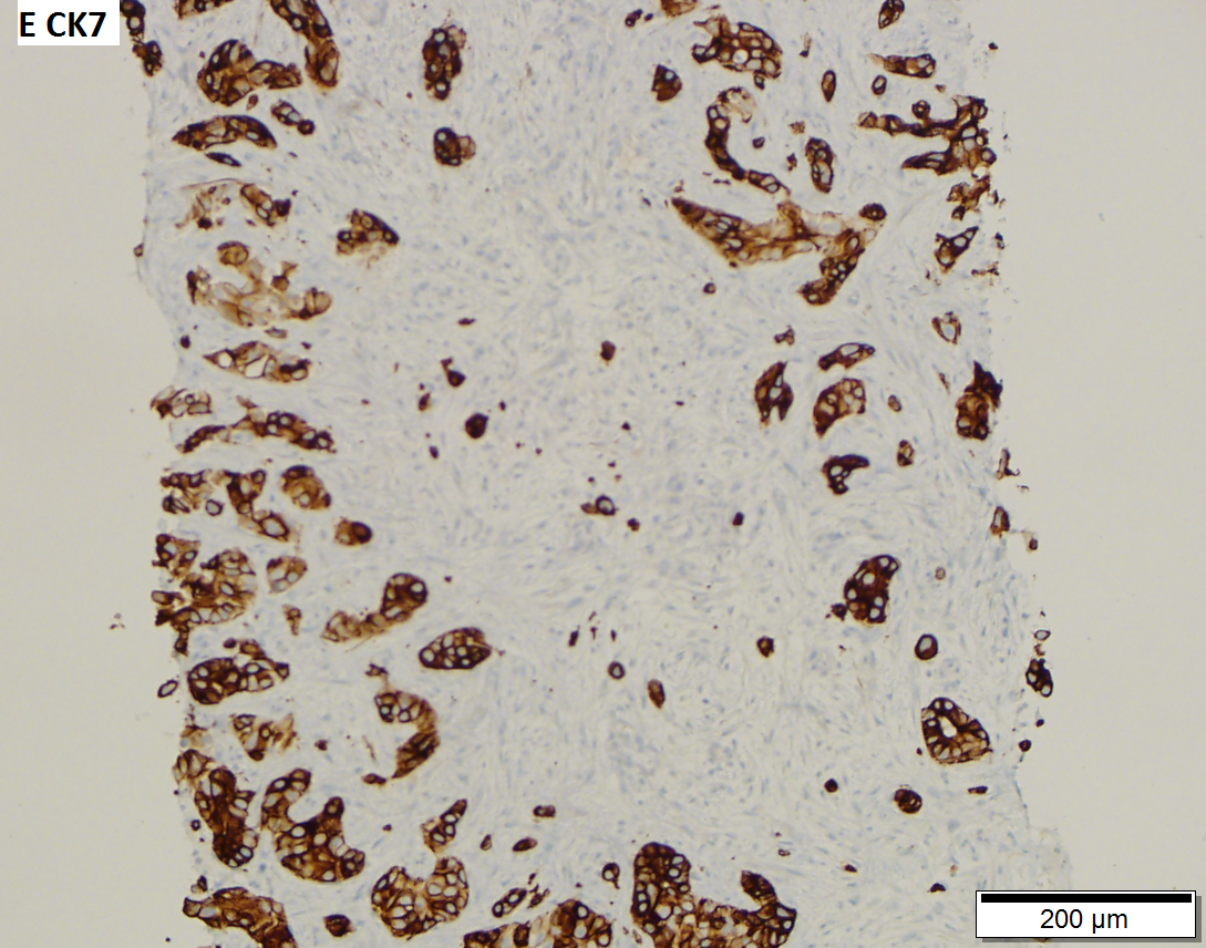 Cholangiocarcinoma, poorly differentiated