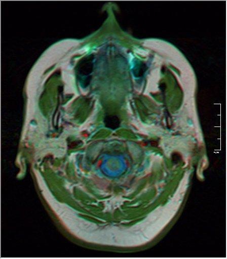 Brain MRI 0106 19.jpg