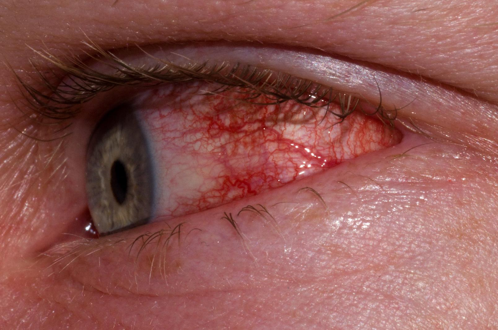 Conjunctivitis (Pinkeye) Causes, Symptoms, and Treatments ...