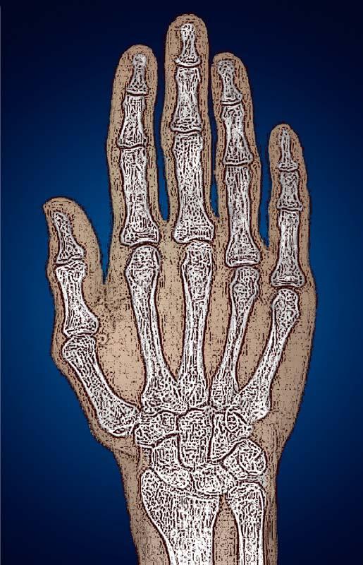 skelett i handen