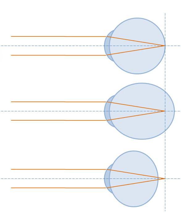 file refractive errors of the eye jpg wikimedia commons rh commons wikimedia org refractive error diagram Normal Refractive Error