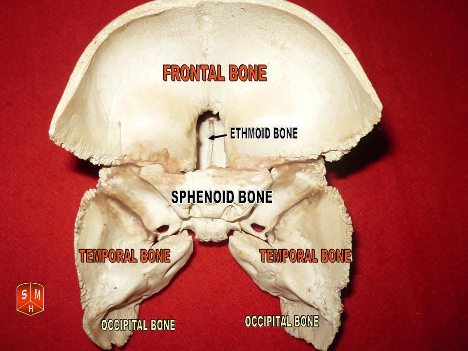 sphenoid and temporal bones 4.jpg