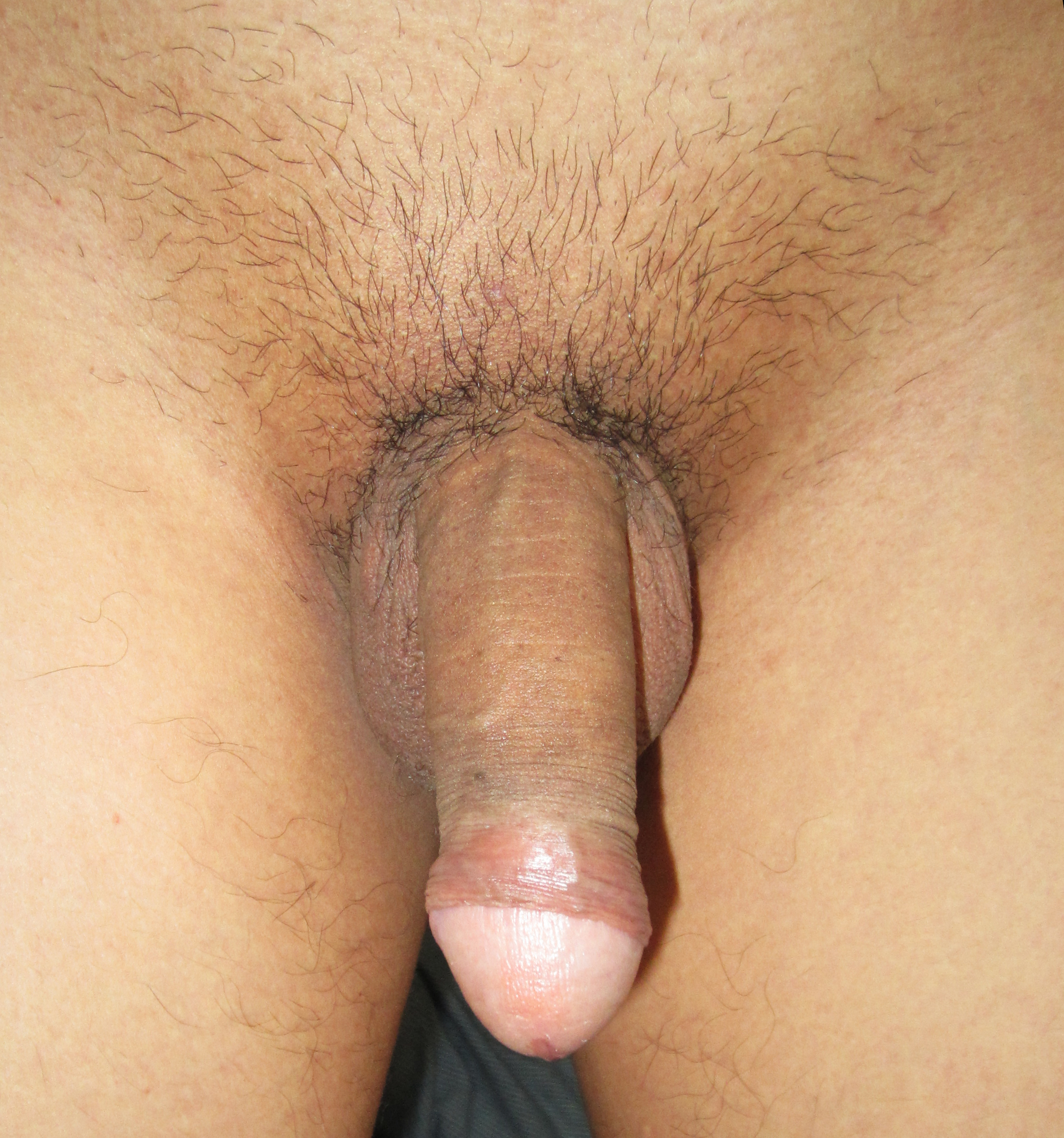 Hairy penis or shaved penis