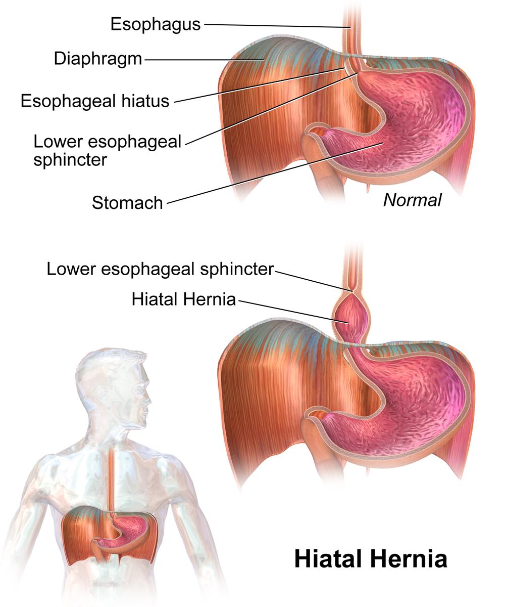Hiatal hernia - Wikiwand