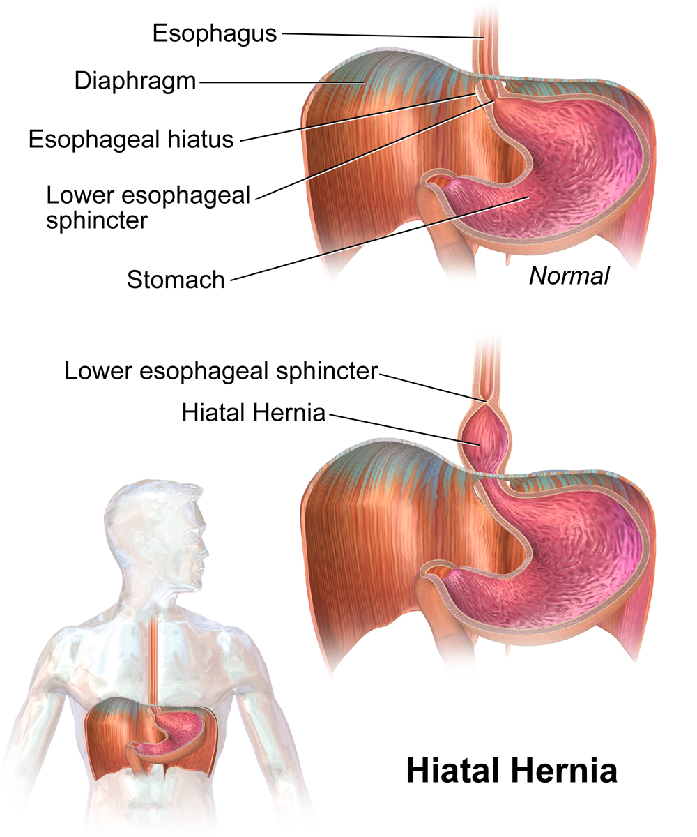 hiatal hernia gerd cause effects