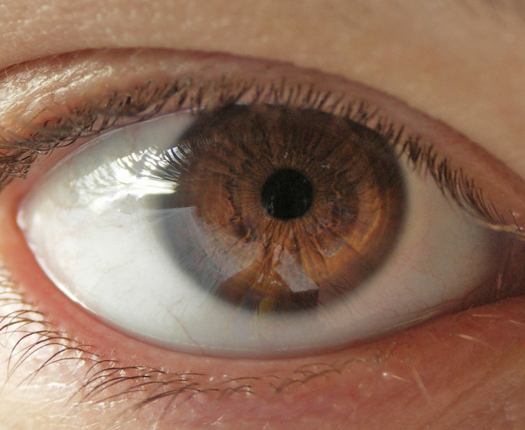 An example of a brown iris  Brown Eyes Iris