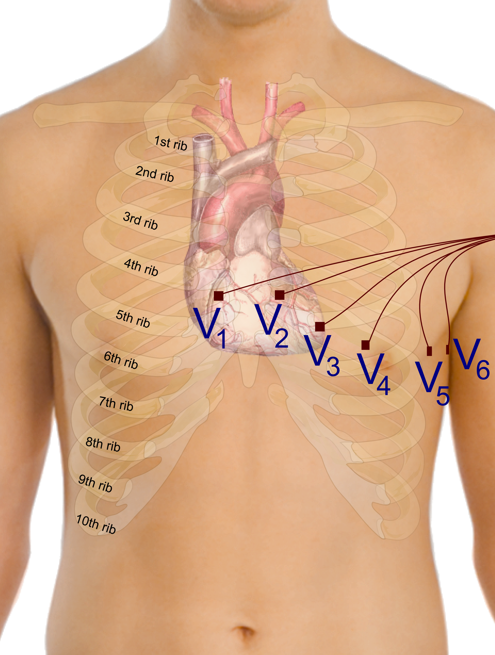 Electrocardiography Invention Story Of Ecg By Willem Einthoven Https Uploadwikimediaorg Wikipedia Commons 4 41 Precordial Leads In