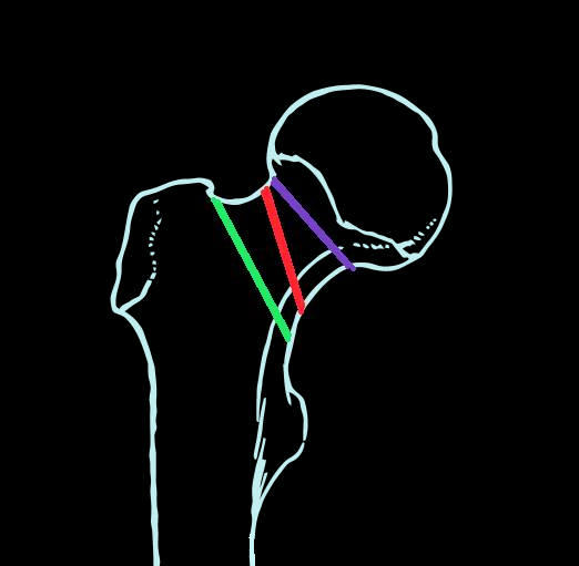 Schenkelhalsfraktur – Wikipedia