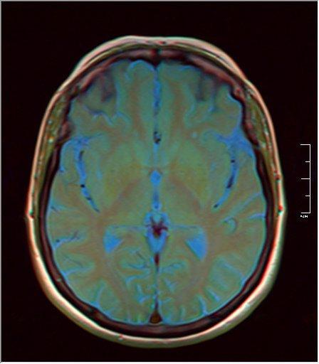 Brain MRI 0153 10.jpg