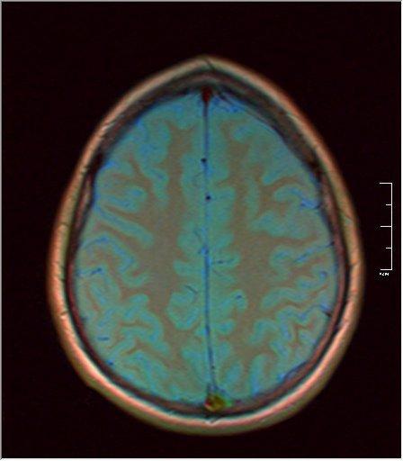 Brain MRI 0189 04.jpg