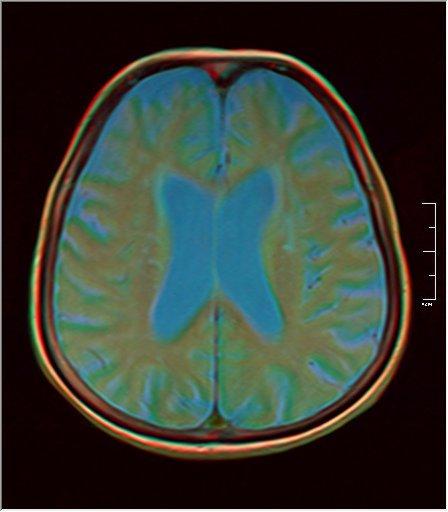 Brain MRI 0198 07.jpg