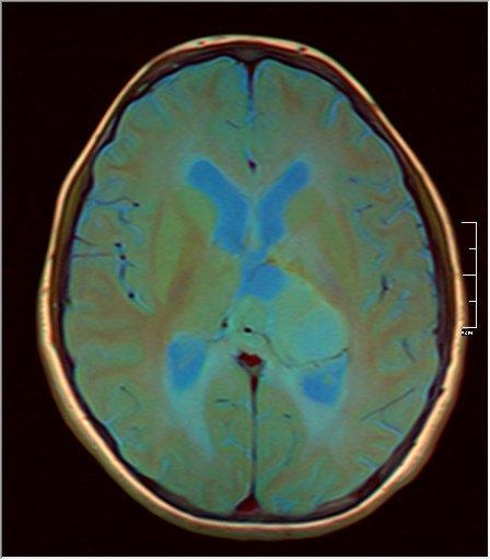 Brain MRI 0199 10.jpg