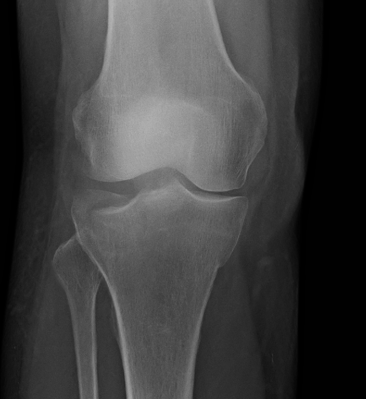 Tibial_Plateau_Fracture