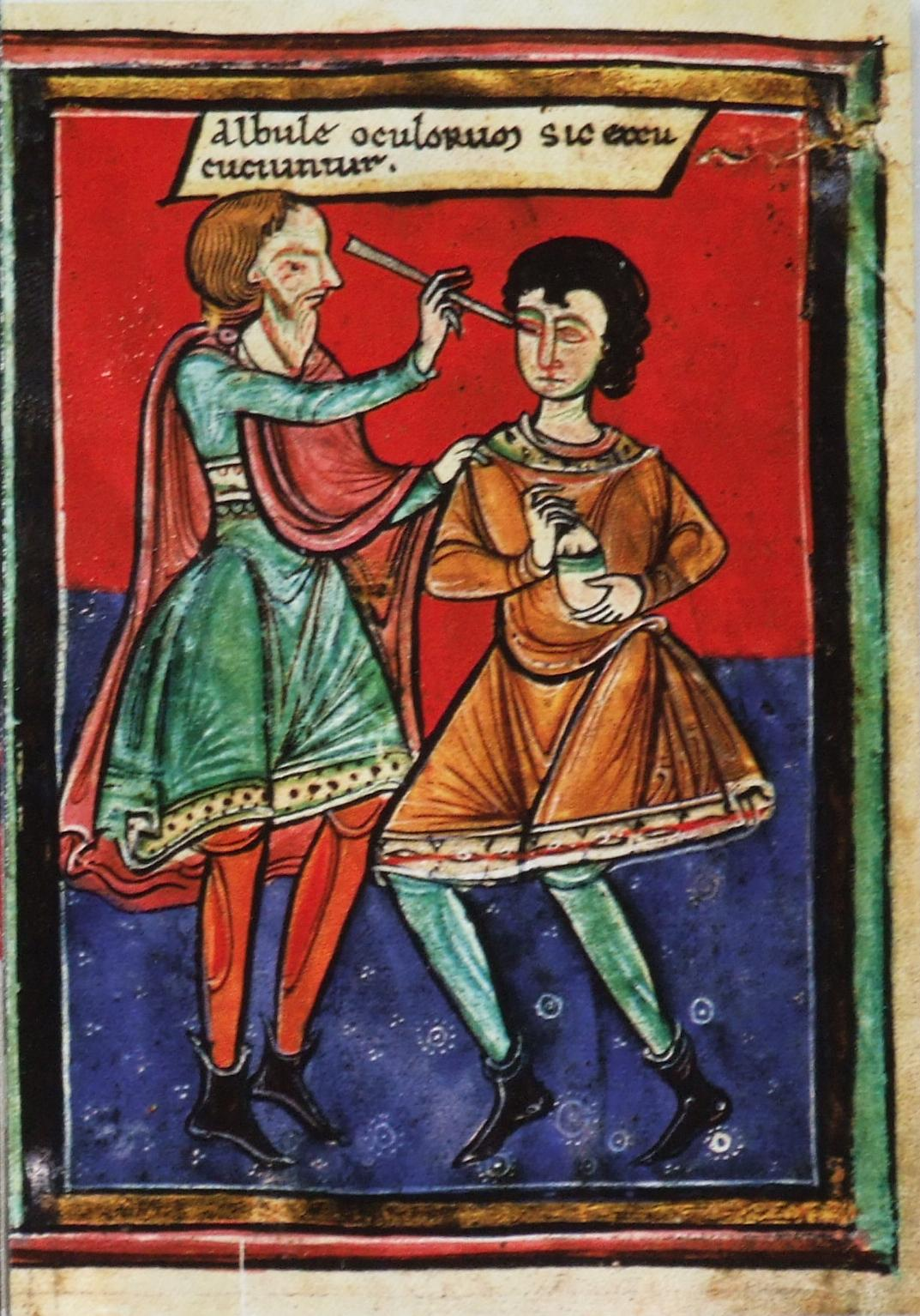 Surgery being performed on the eye. 1195 AD.