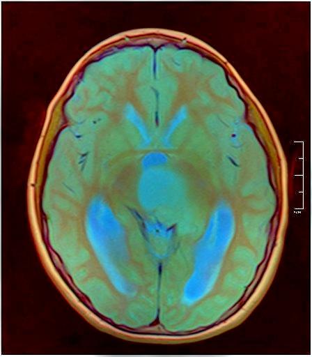Brain MRI 0015 08.jpg