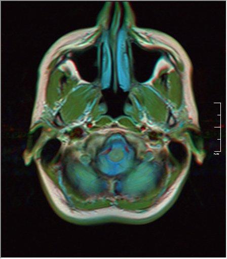 Brain MRI 0053 18.jpg