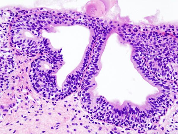 Sintomas infeccion urinaria cistitis