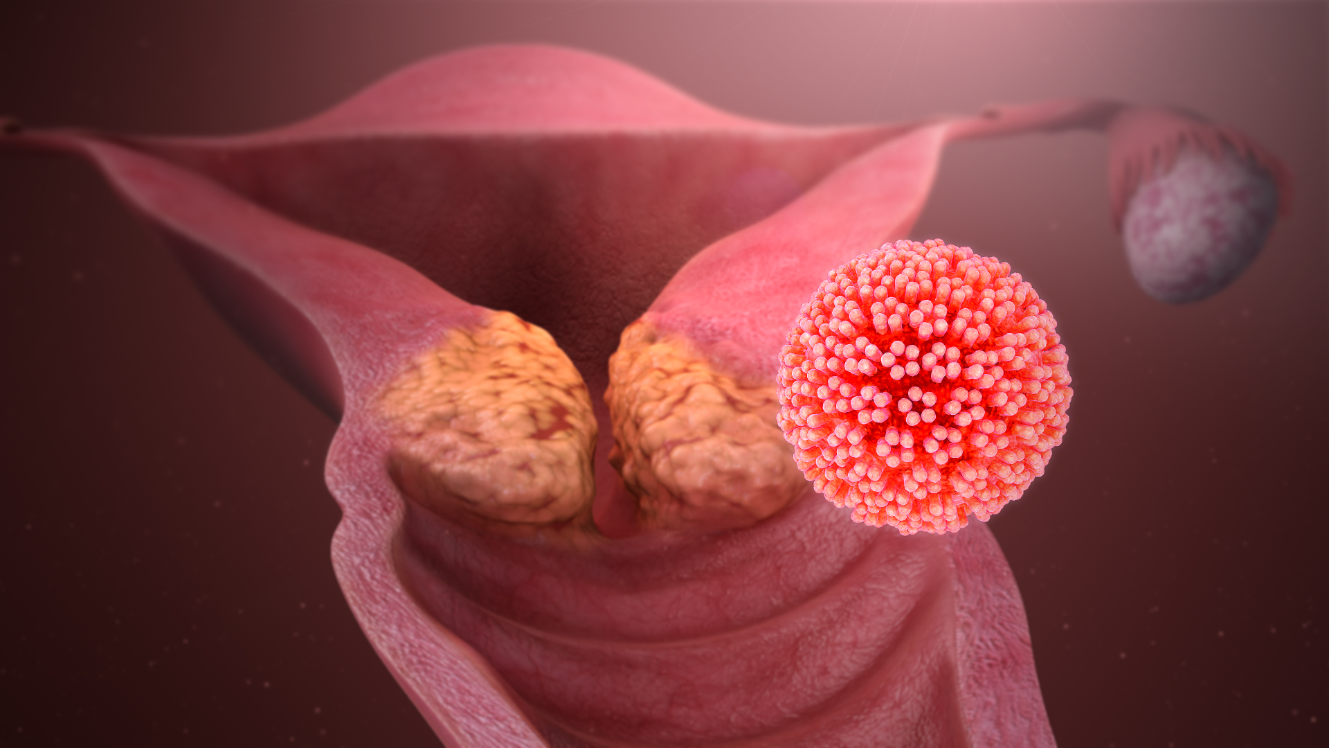 Is the hpv virus always transmitted sexually