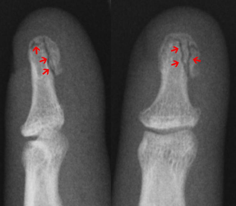 Gribok der Nägel auf den Händen die Symptome und