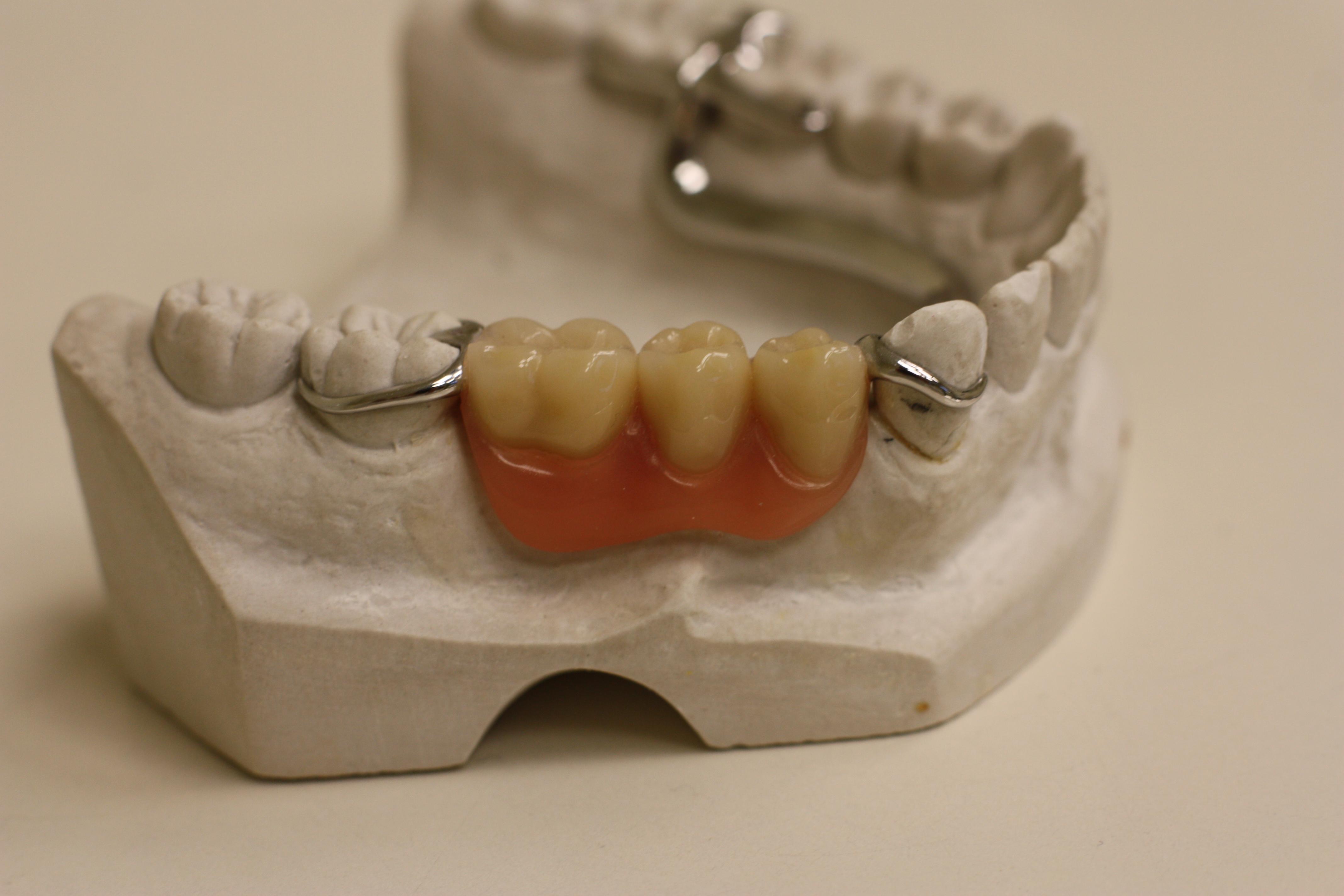 Build It Dental Material