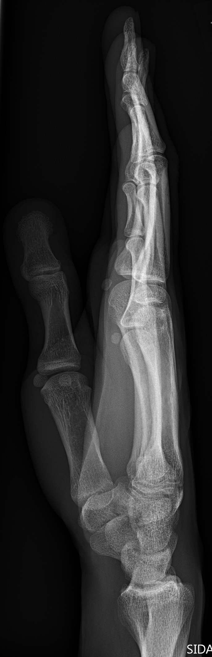File:X-ray of normal hand by lateral projection.jpg - Wikimedia Commons