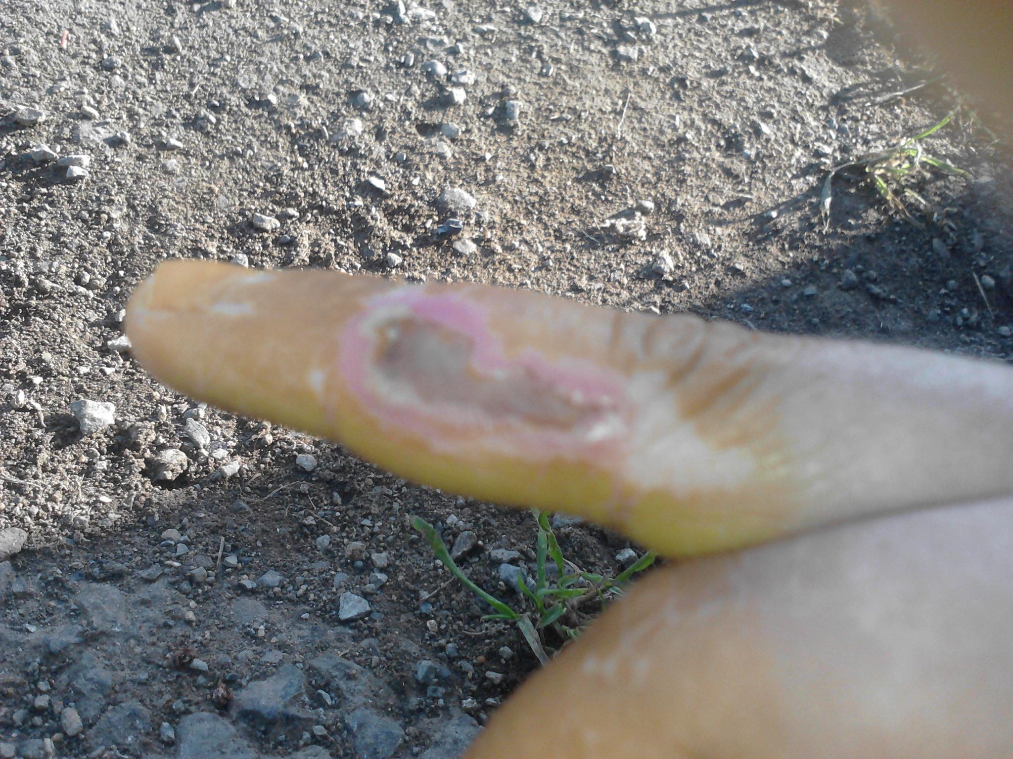 hydrochloric acid burn hand wwwpixsharkcom images