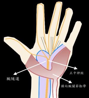 腕隧道症候群
