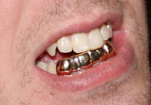 sharp grillz. but by then the feds saw public-relations handwriting on wall. they claimed not to know whether grills were or weren\u0027t permanently bonded sharp grillz