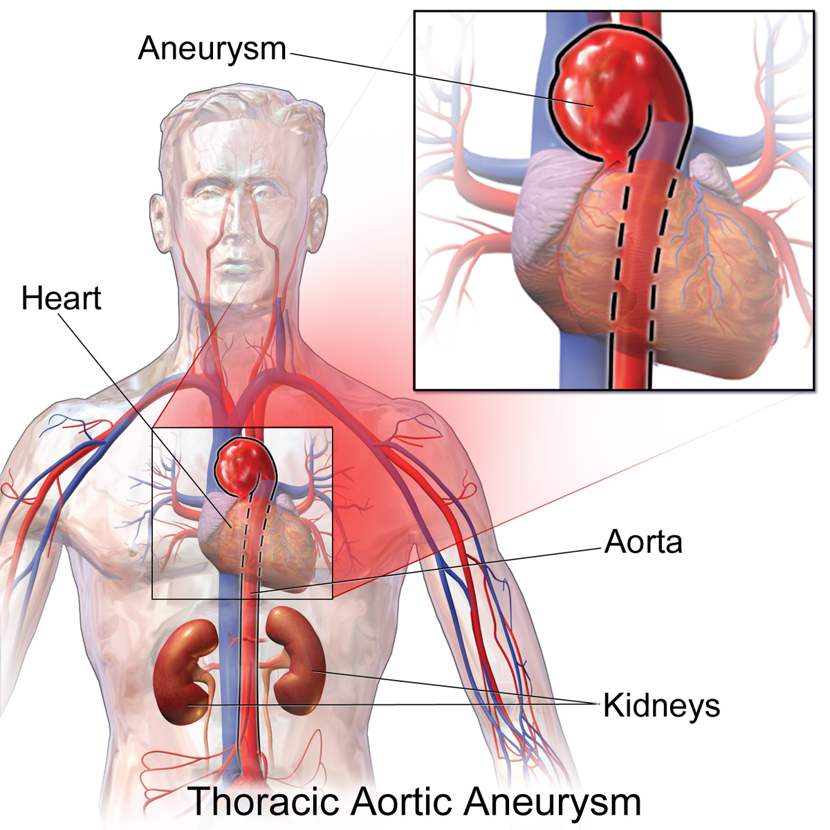 thoracic aortic aneurysm - wikipedia, Human Body