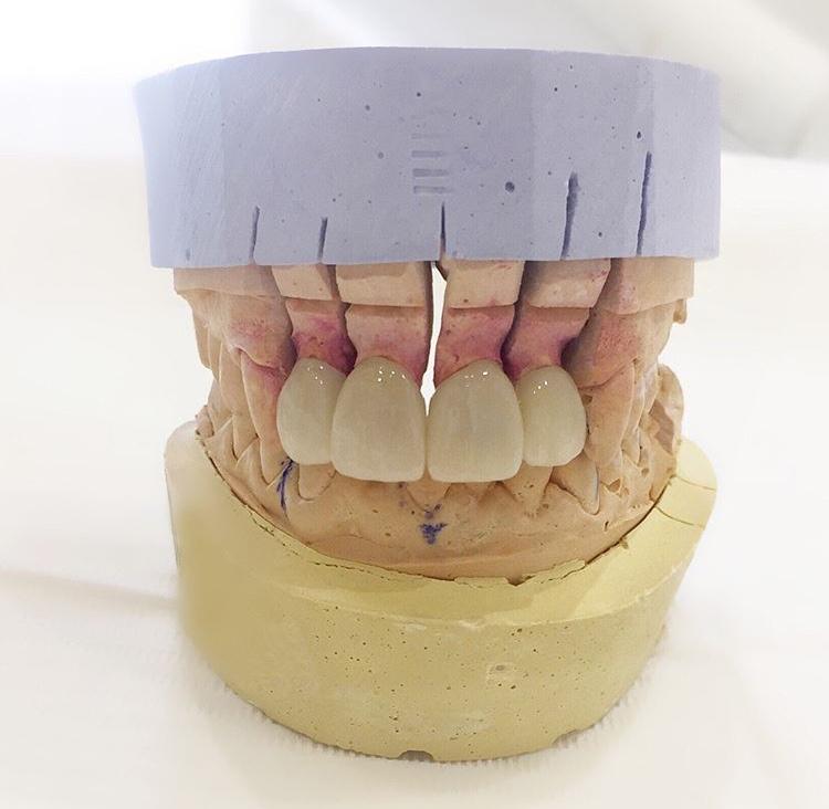 Dental laboratory - Wikipedia