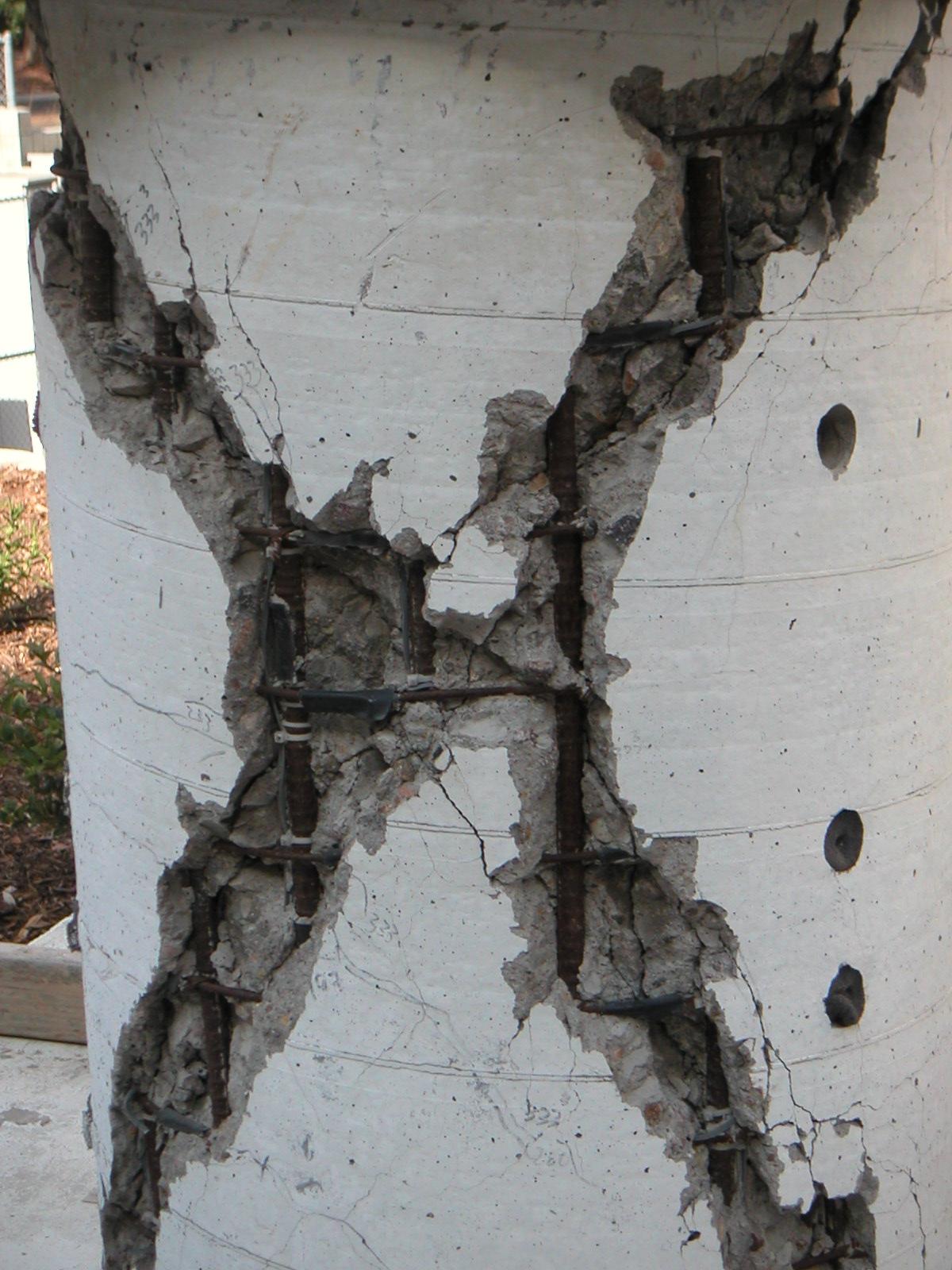 Reinforced Cement Concrete : Transvaginal mesh risks and lawsuits