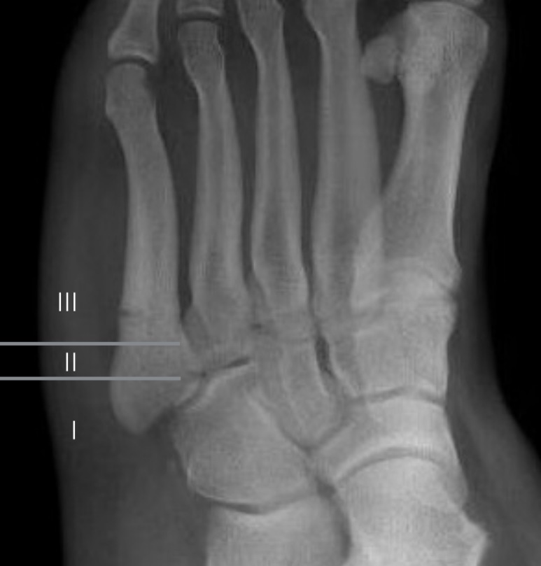 Jones_fracture%2C_healing_zones_according_to_Polzer