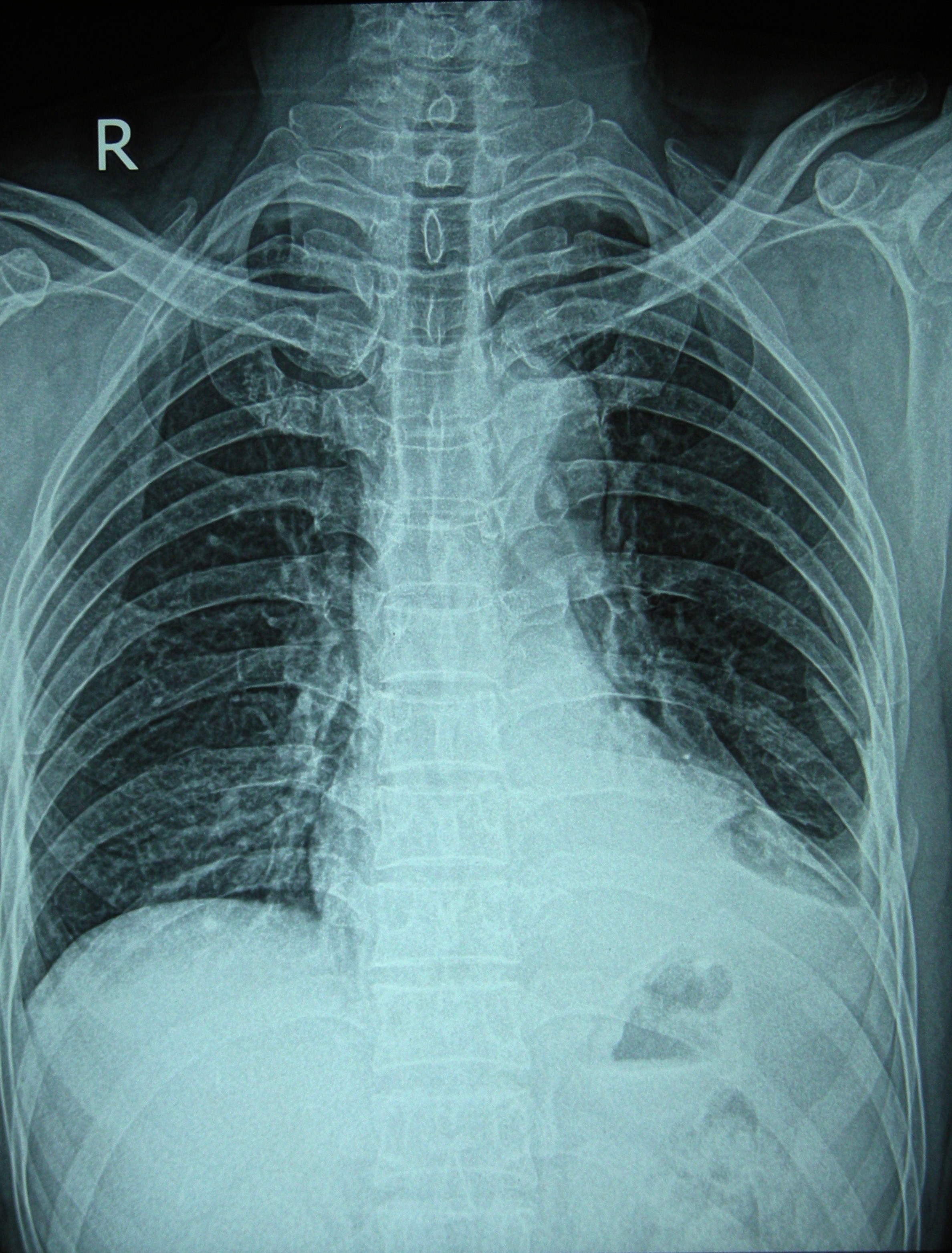 Перелом ребер: симптомы и лечение 84