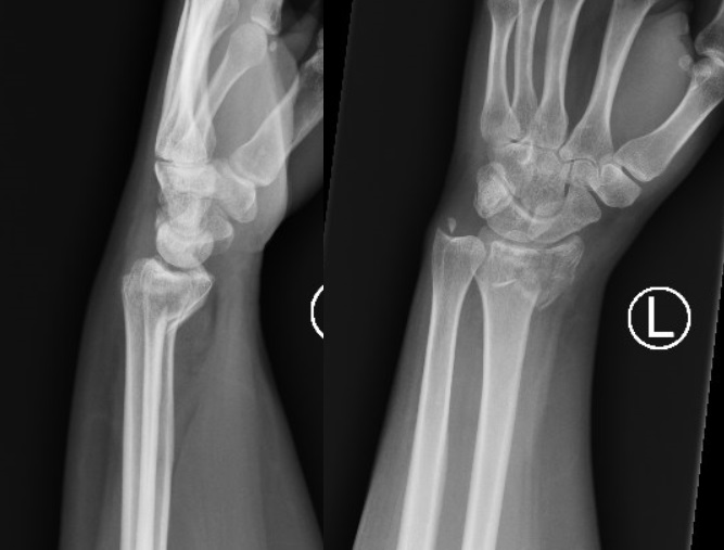 Smith S Fracture Wikipedia