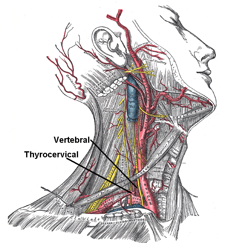 zaradiology: Anatomy: The Neck, anatomy, Posterior Triangle of the Neck