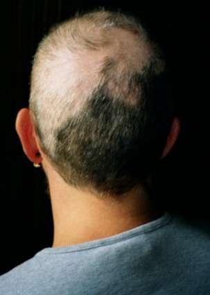 Le résultat de l'arrachage de cheveux