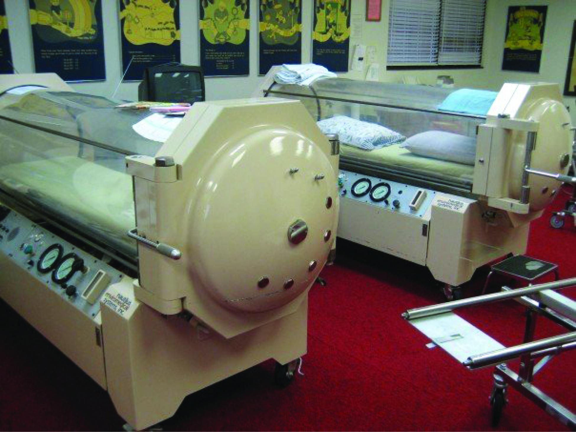 File:2332 Hyperbaric Chamber jpg - Wikimedia Commons