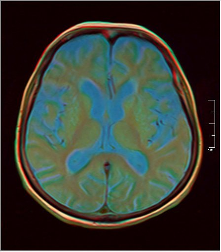 Brain MRI 0198 09.jpg