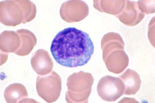 Fichier:Mononucléose infectieuse-2.JPG — Wikipédia