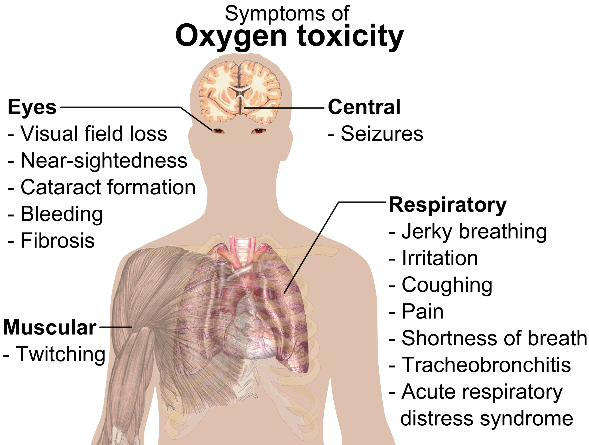 File:Symptoms of oxygen toxicity.png - Wikipedia, the free ...