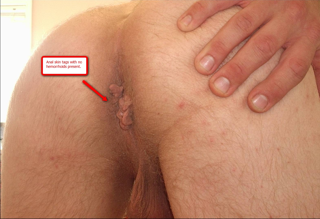 File:Anal skin tags without hemorrhoids present.jpg