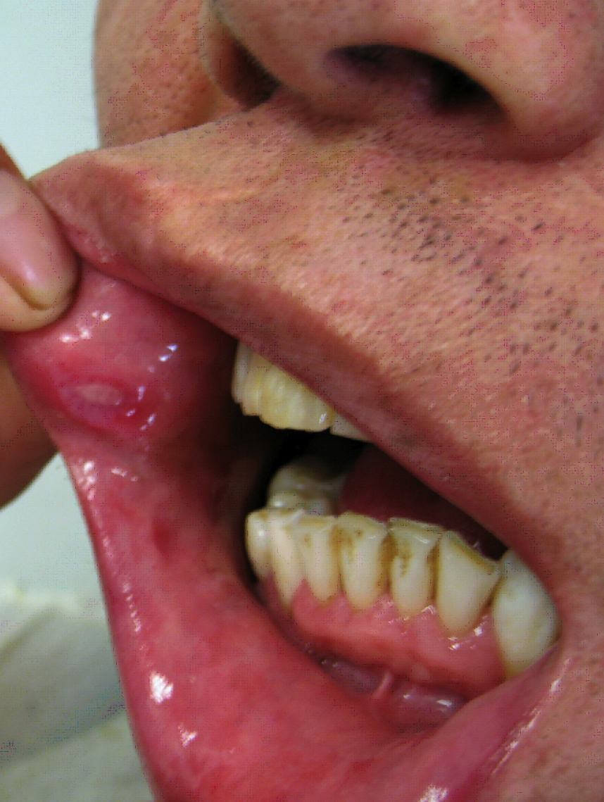 Mouth ulcers - NHS Choices