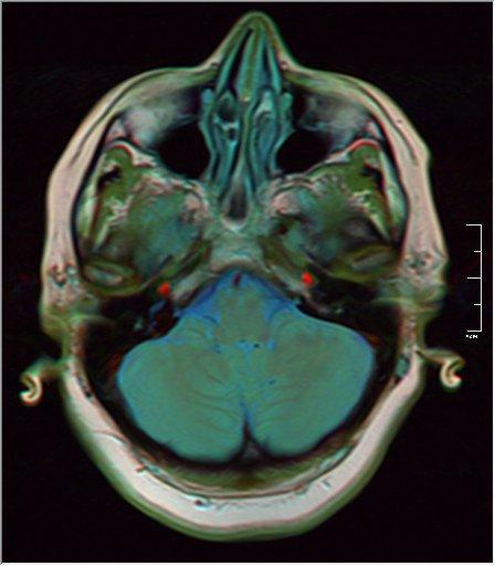 Brain MRI 0129 17.jpg