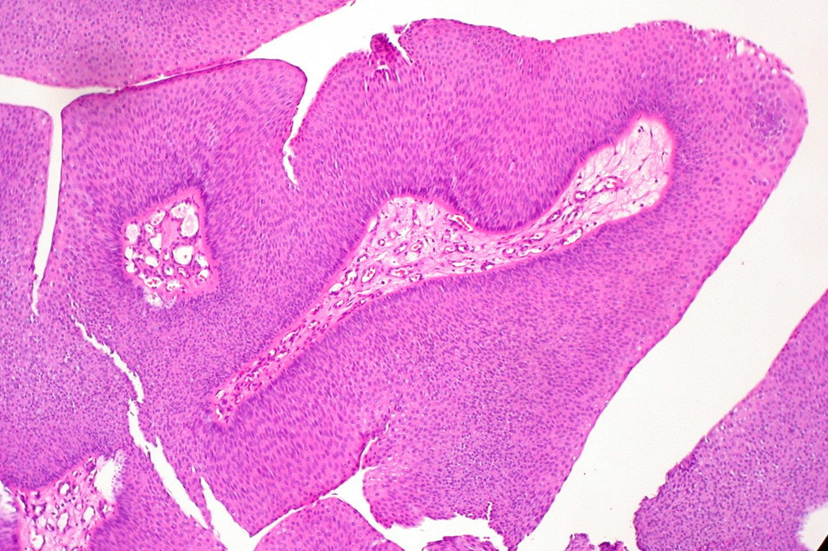 fungiform papilloma nasal)
