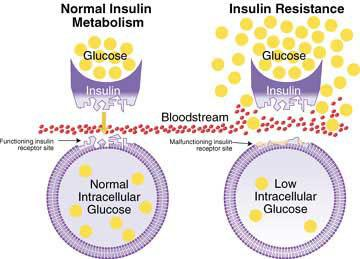 Insulin Resistant Type  Diabetes Chat Room Support Groups