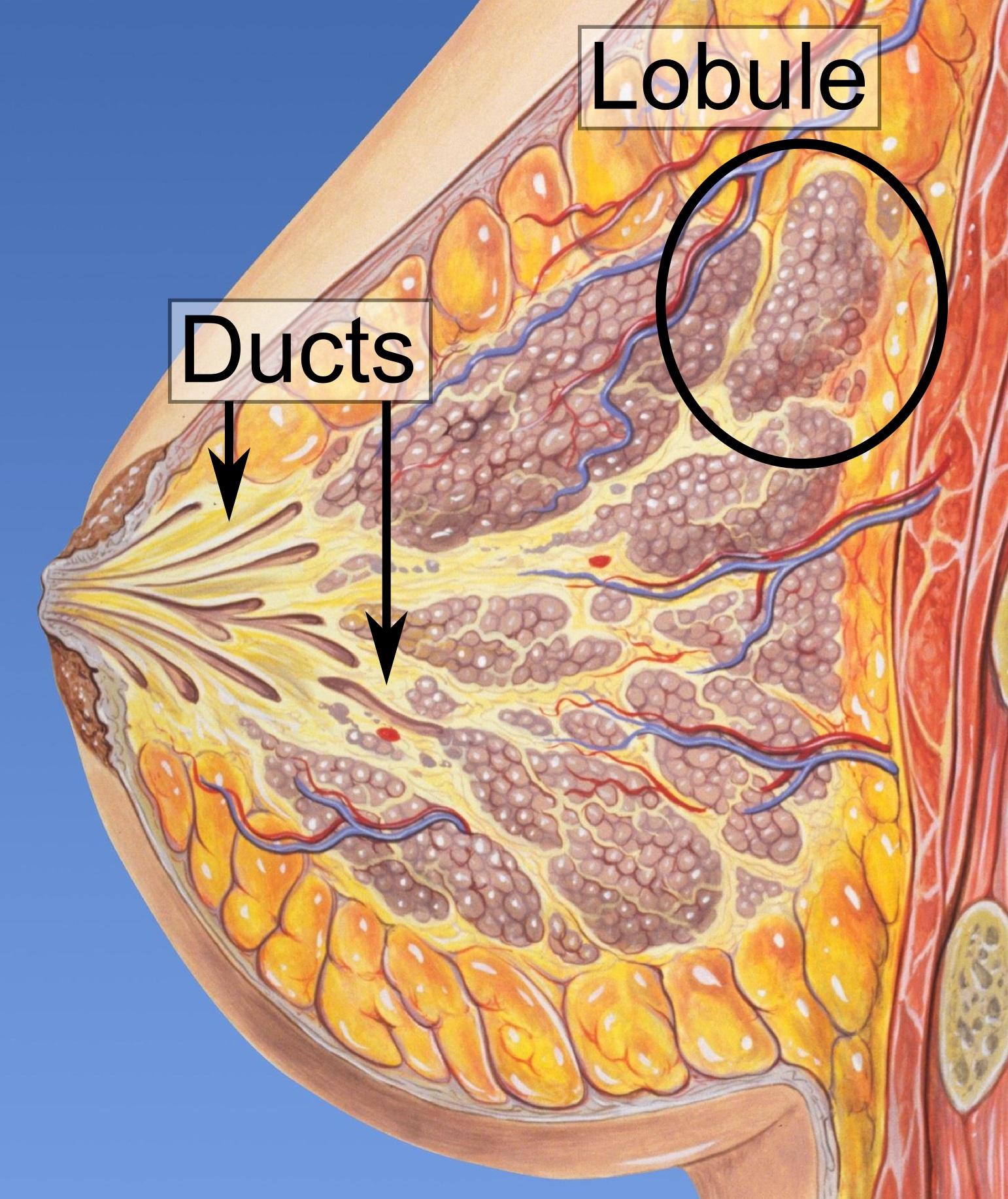 Ductal carcinoma in situ - Wikipedia