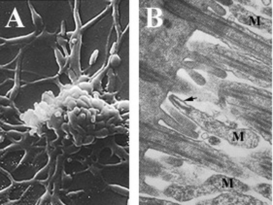 Mycoplasma pneumoniae - Wikipedia