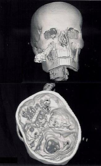 dating skull fractures