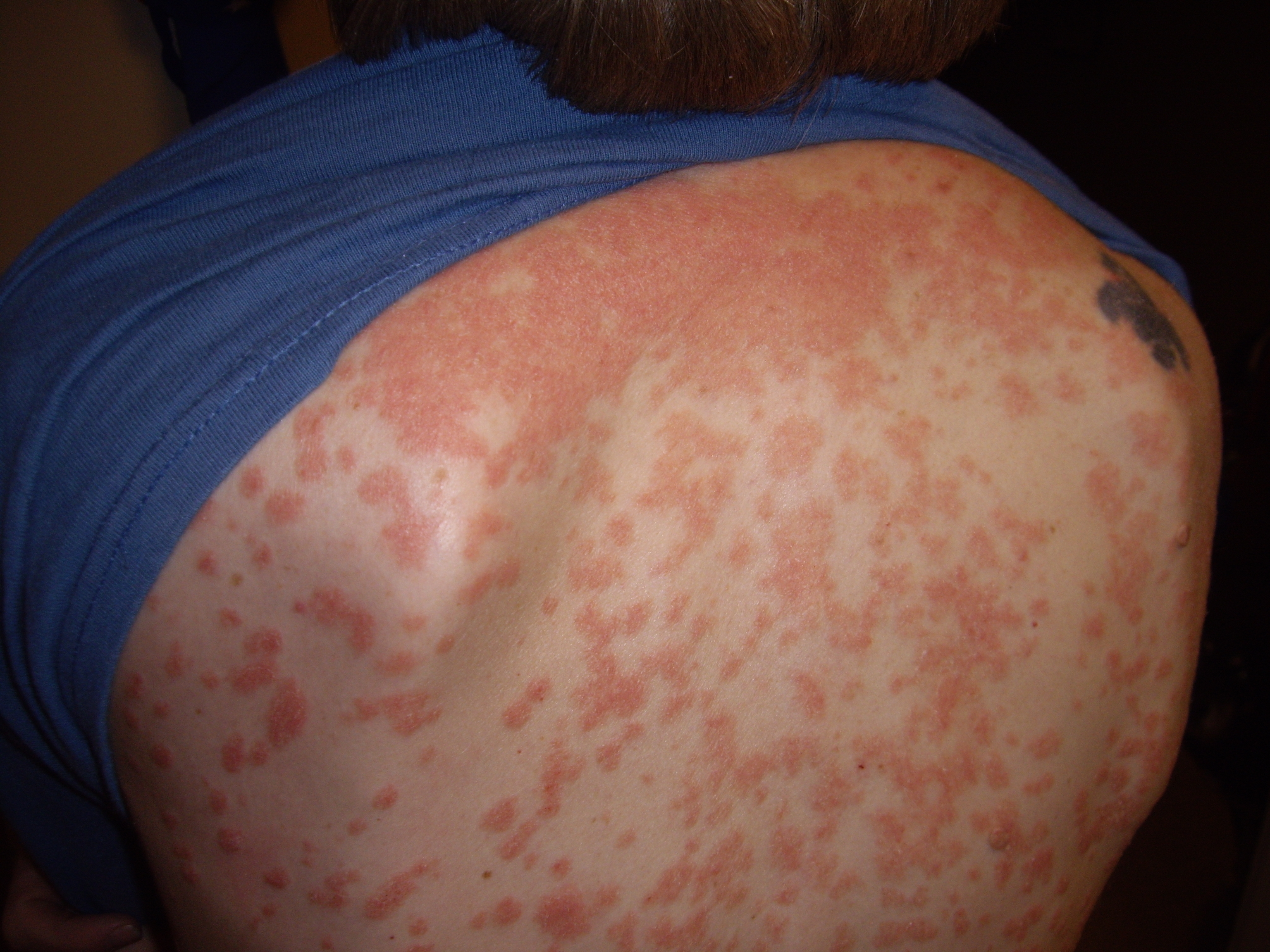 Pictures of Psoriasis - OnHealth